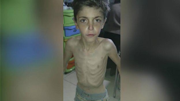 أفاد ناشطون بوفاة العديد من الناس خلال الأسابيع الماضية في المناطق المحاصرة من كلا الجانبين بسبب سوء التغذية
