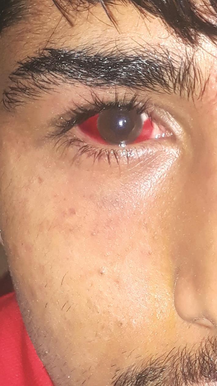 الاعتداء على وجه أحمد