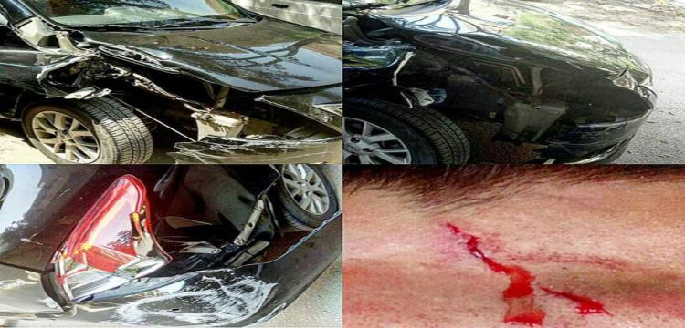 سيارة محمد عادل وأثار تعرضه لبعض الكدمات